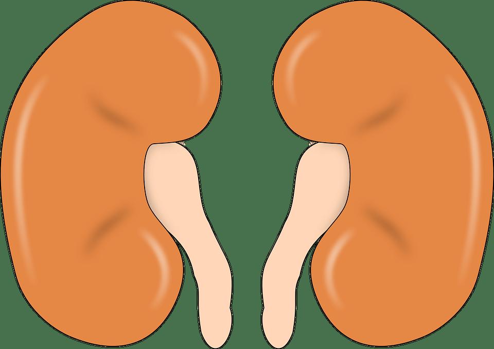 पथरी का कारण , लक्षण और घरेलु उपचार